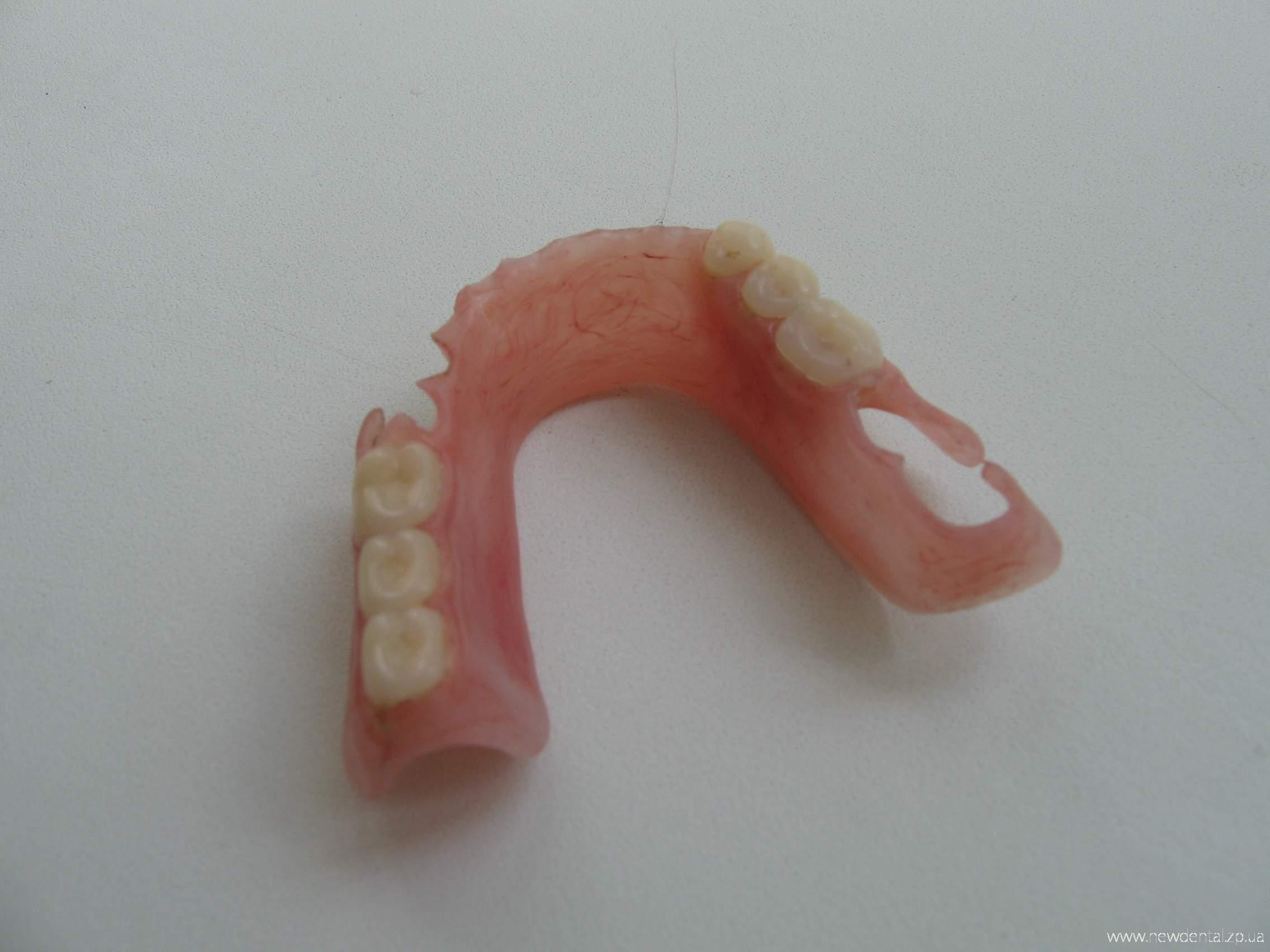 Фото съемного протеза на крючках